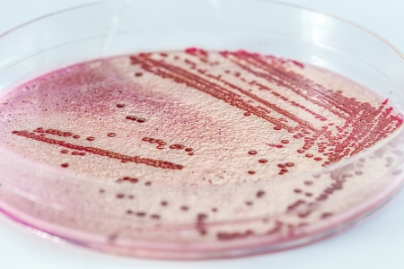 "NYC Hospitals Battle Drug-Resistant ""Superbug"""